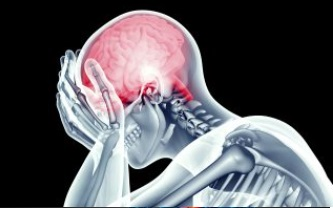 Dr. Stewart Chiropractor treats headaches