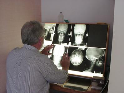 Dr. Stewart checking xrays of patient